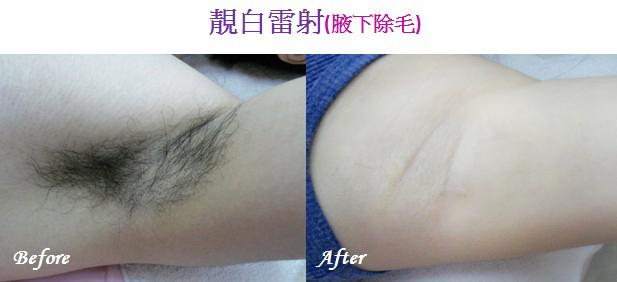 「麗姿添身 除毛」的圖片搜尋結果