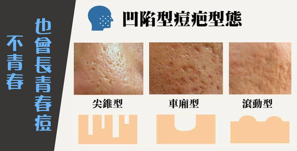 「麗姿 凹洞 痘疤」的圖片搜尋結果